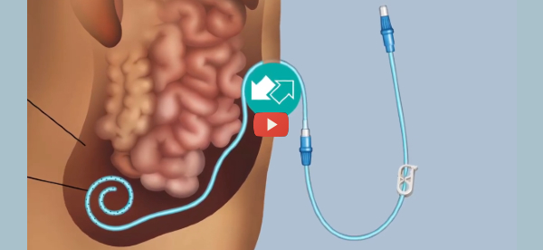 Remote Monitoring Improves Peritoneal Dialysis Success [video]