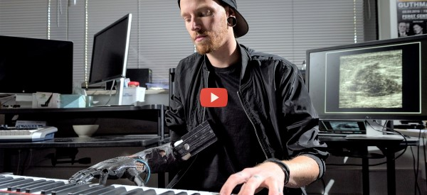 Amputee Plays Piano Again with AI Prosthesis [video]
