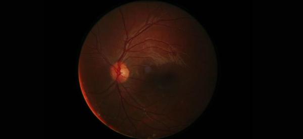 Retinal Prosthesis to Restore Vision