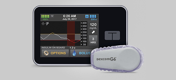 New Device Helps Control Childhood Diabetes