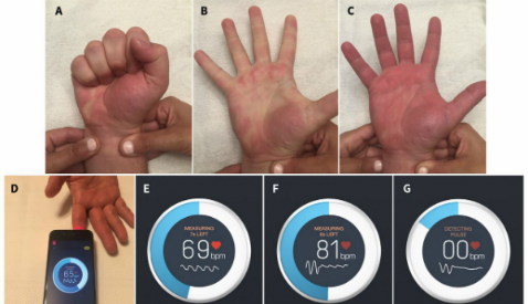 Smartphone App Outperforms Standard Clinical Test