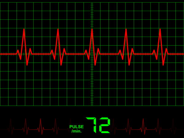 New Sensor for Better Heart Monitors