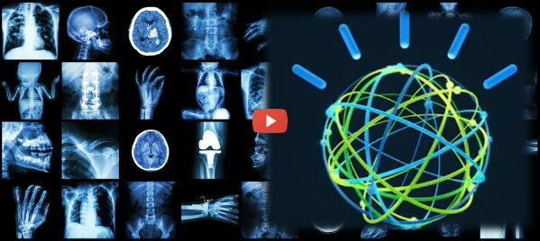 IBM Watson Learns to See Medical Images [video]