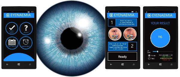 eyenemia
