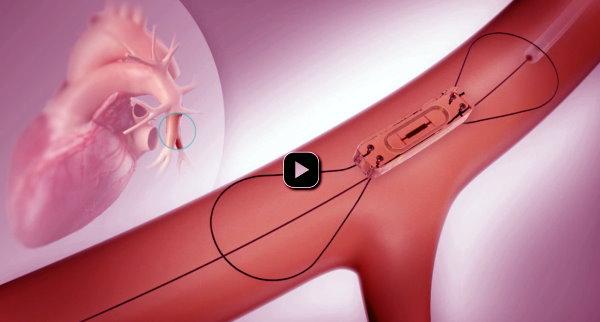 CardioMEMS HF System