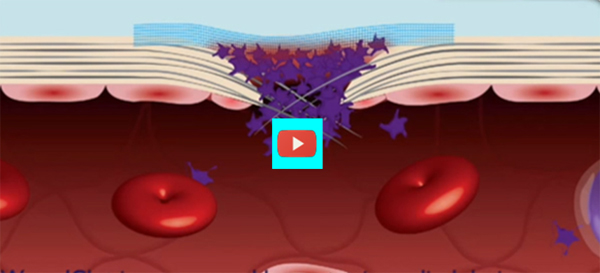 Stop Traumatic Blood Flow with WoundClot [video]