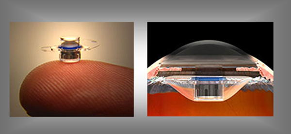 CentraSight, an Implantable Telescope for Age-Related Macular Degeneration