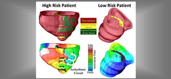 A Personalized Virtual Heart Predicts Arrhythmia
