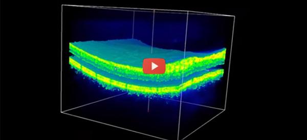 Google's DeepMind Teams With Moorfields For Early Eye Disease Detection [video]