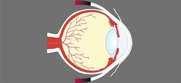 Progress in Reconnecting the Retina to the Brain