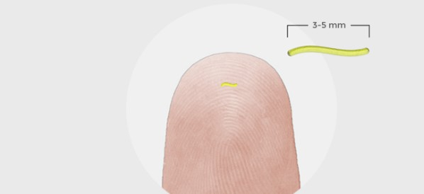 Oxygen-Monitoring Implant Gets CE Approval