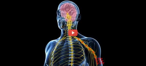 Armband Relieves Migraine Pain [video]