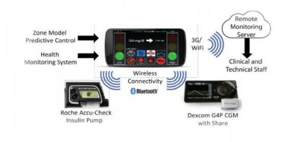 Artificial Pancreas Control Success Using Smartphone App