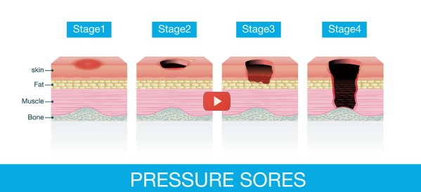Wave a Smartphone for Wound Care Management [video]