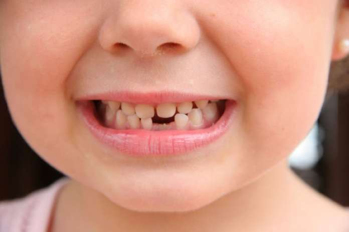 Children Losing their Teeth