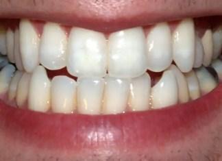 Cavities