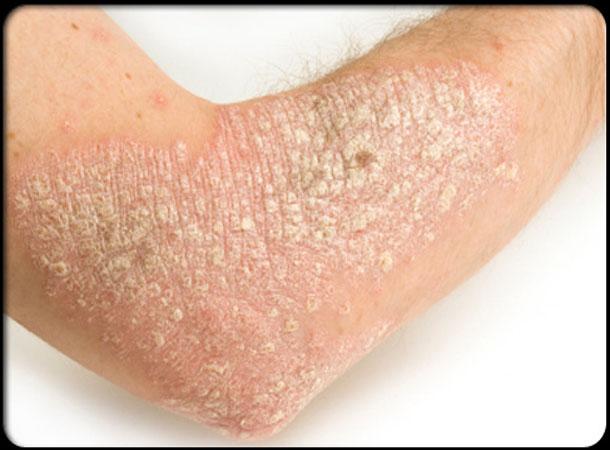 8 Ways to Treat Psoriasis Skin Disease - Online Aushadhi ...