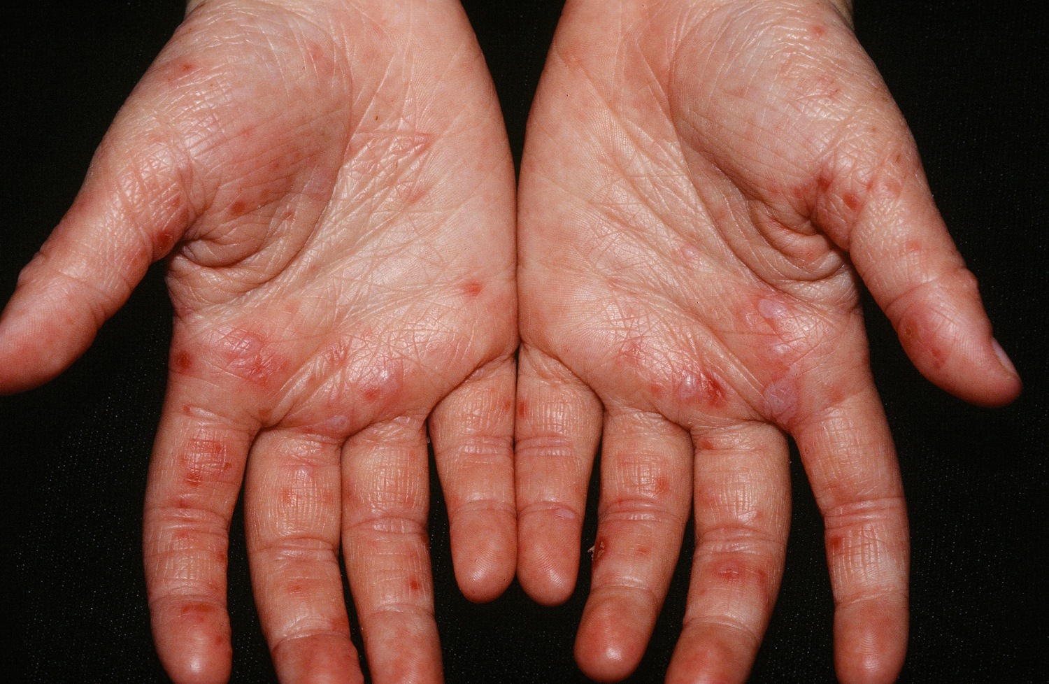 Pictures of Hand-Foot-and-Mouth Disease - HTQ