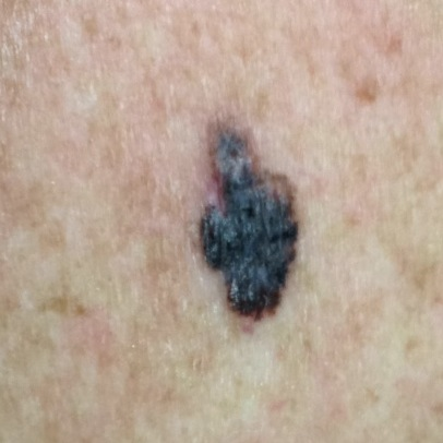 What Do Cancerous Moles Look Like  HTQ