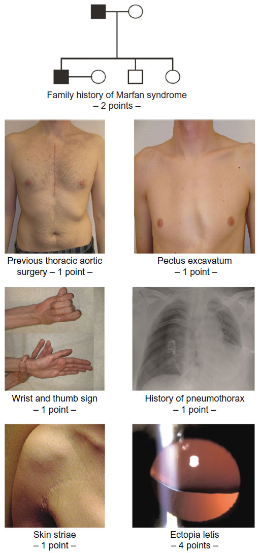 Can You Show Me Some Pictures of Marfan Syndrome? - HTQ