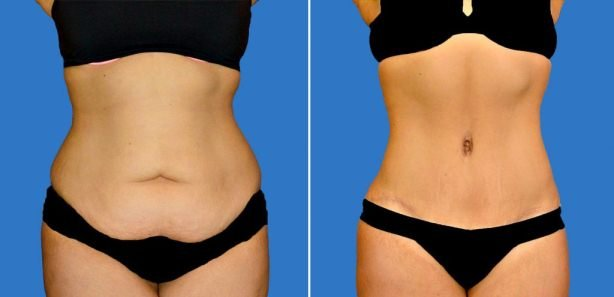 Photo showing before and after a tummy tuck surgery