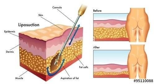 Dr Miami liposuction price
