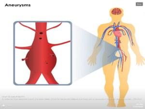 Abdominal aneurysm