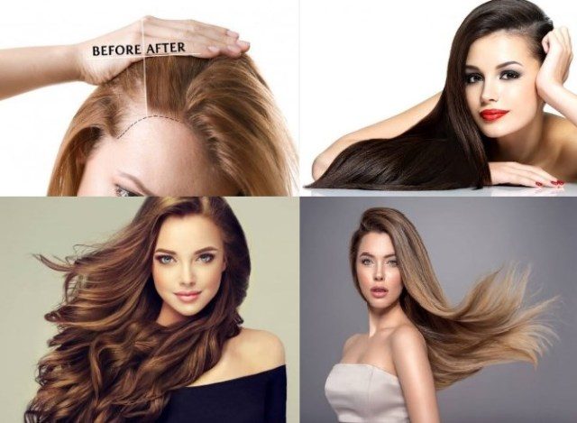 Remedio casero para la pérdida del cabello