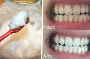 COCONUT OIL IS FAR BETTER THAN YOUR TOOTHPASTE!