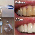 Whiten Your Teeth And Get Rid Of Plaque Without Expensive Treatments