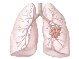 Vitamin B linked to increased lung cancer risk
