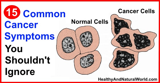 15 Common Cancer Symptoms You Shouldn't Ignore