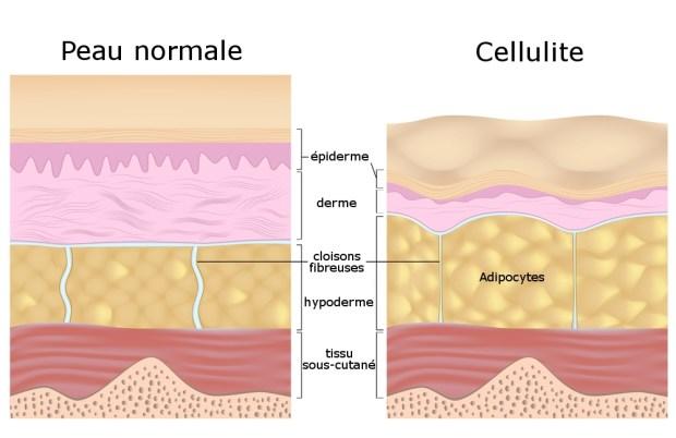 Les Différents Types De Cellulite Healthy Body Fit