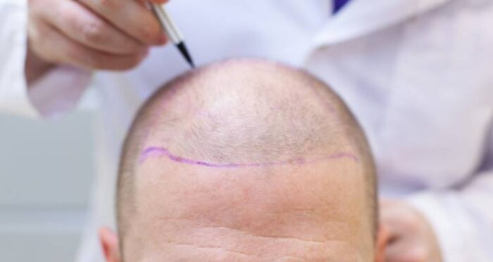 Hair Transplant After 10 Years