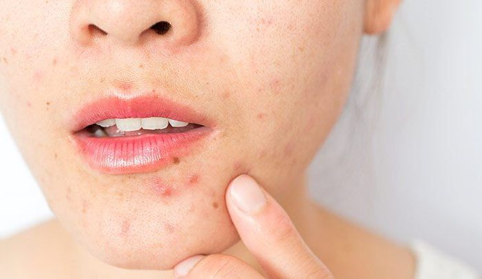 Types & Causes Of Skin Infection