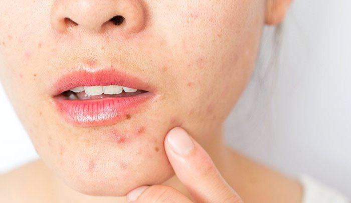Types Of Skin Diseases