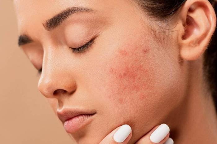 Pimples: Causes, Prevention, and Treatment