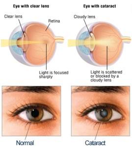 CataractsBA