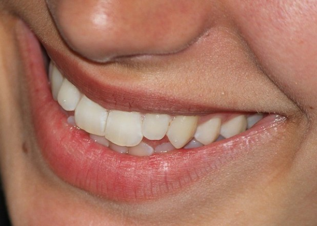 Teeth Whitening & Teeth Care - Are You Taking Proper Care of Your Teeth? 4