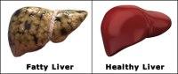 Fatty Liver Remedy 2