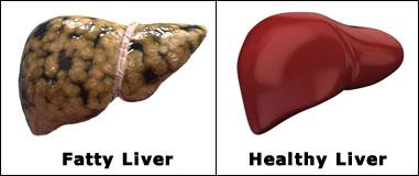 Fatty Liver Remedy 6