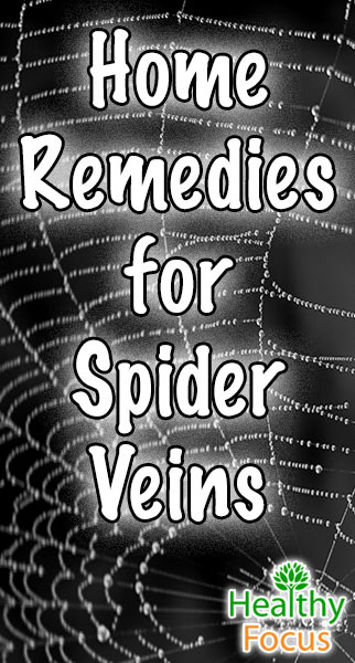 mig-home-remedies-for-spider-veins