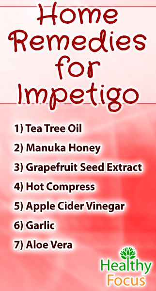 mig-home-remedies-for-impetigo