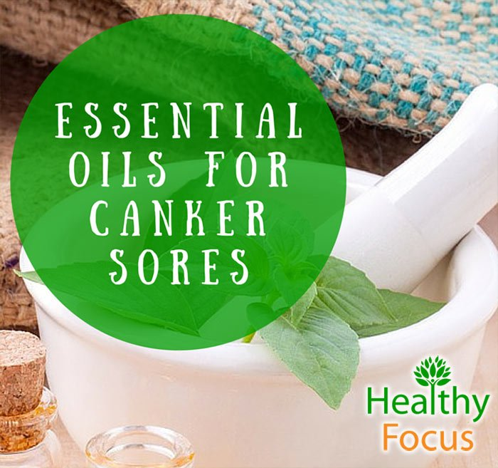 essential oils for canker sores