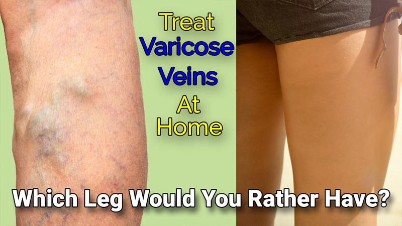 treat varicose veins at home