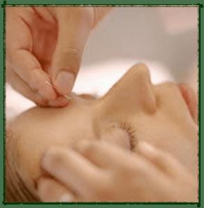 Merritt Island Acupuncture