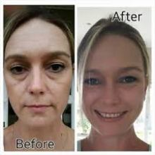 beforeafter luminesce2
