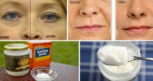 SAY GOODBYE TO WRINKLES AND FACELIFTS WITH THIS HOMEMADE LOTION!