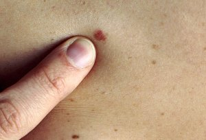 Should You Worry if Your Skin Has Little Red Bumps Like This One on It?