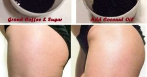 Cellulite Home Remedies That Work Like A Charm